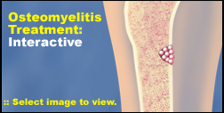 Osteomyelitis Treatment: Interactive